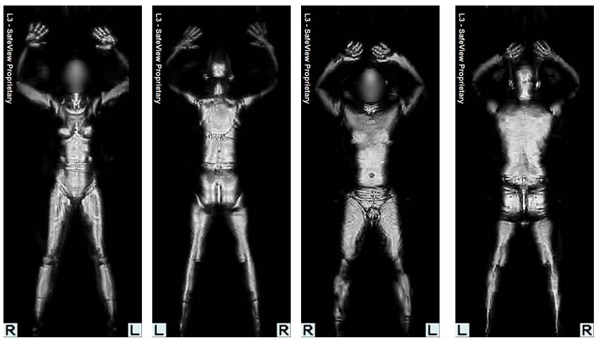 Millimeter wave body scans work extremely well. Photo by Michael Sauers / Flickr.